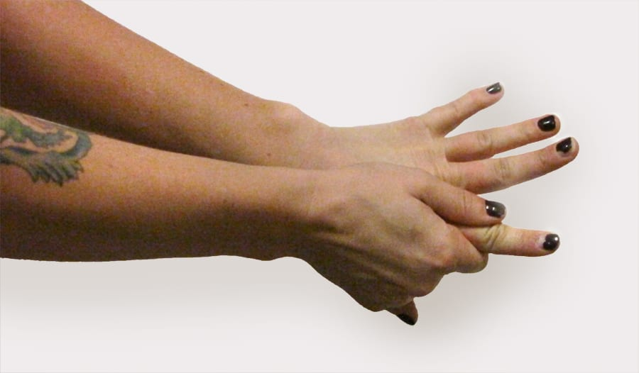 Myofascial stretch for finger pain from knitting