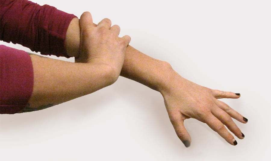 Myofascial stretch for hand stiffness - 1